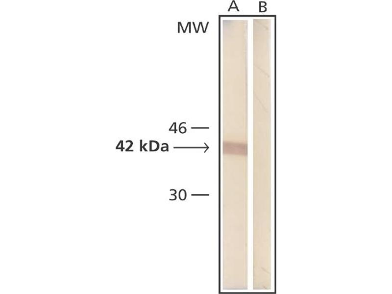 Western Blotting (WB) image for anti-beta Actin antibody (Actin, beta) (N-Term) (ABIN153386)