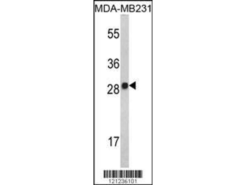 Western Blotting (WB) image for anti-IL2 antibody (Interleukin 2) (ABIN2487937)