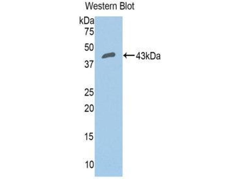 Western Blotting (WB) image for anti-Complement Factor B (CFB) (AA 35-160) antibody (ABIN1858372)