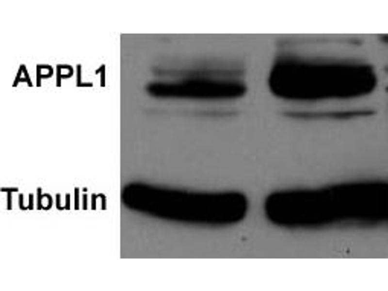 Western Blotting (WB) image for anti-Adaptor Protein, phosphotyrosine Interaction, PH Domain and Leucine Zipper Containing 1 (APPL1) Antikörper (ABIN252906)