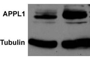 Western Blotting (WB) image for anti-Adaptor Protein, phosphotyrosine Interaction, PH Domain and Leucine Zipper Containing 1 (APPL1) antibody (ABIN252906)