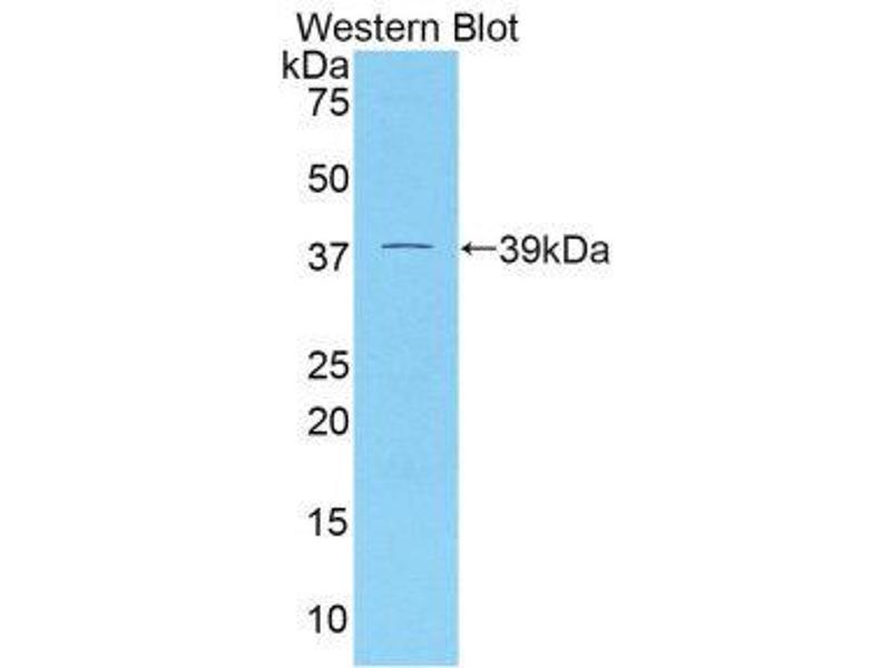 Western Blotting (WB) image for anti-Dickkopf Homolog 4 (Xenopus Laevis) (DKK4) (AA 37-141) antibody (ABIN1858646)