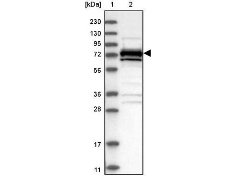 Western Blotting (WB) image for anti-Mitogen-Activated Protein Kinase Kinase Kinase 2 (MAP3K2) antibody (ABIN4333538)
