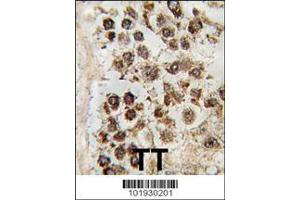 Image no. 2 for anti-Protein AF-10 (MLLT10) (AA 998-1027), (C-Term) antibody (ABIN390125)