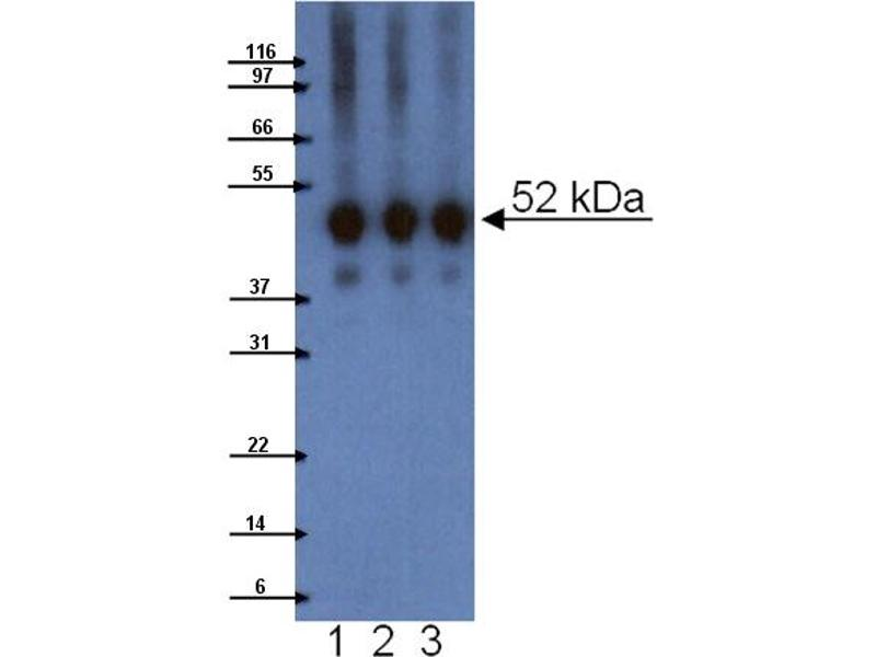 Western Blotting (WB) image for anti-Lymphocyte-Specific Protein 1 (LSP1) (AA 75-215) antibody (ABIN968145)