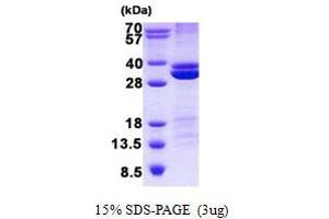 Image no. 1 for Ras Association (RalGDS/AF-6) Domain Family Member 3 (RASSF3) protein (His tag) (ABIN1098778)