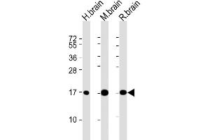 Image no. 4 for anti-Microtubule-Associated Protein 1 Light Chain 3 alpha (MAP1LC3A) antibody (ABIN2937208)
