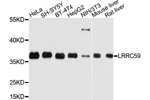 Image no. 1 for anti-Leucine Rich Repeat Containing 59 (LRRC59) antibody (ABIN6566743)