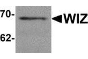 Image no. 1 for anti-Zinc Finger Protein 803 (ZNF803) (C-Term) antibody (ABIN783351)