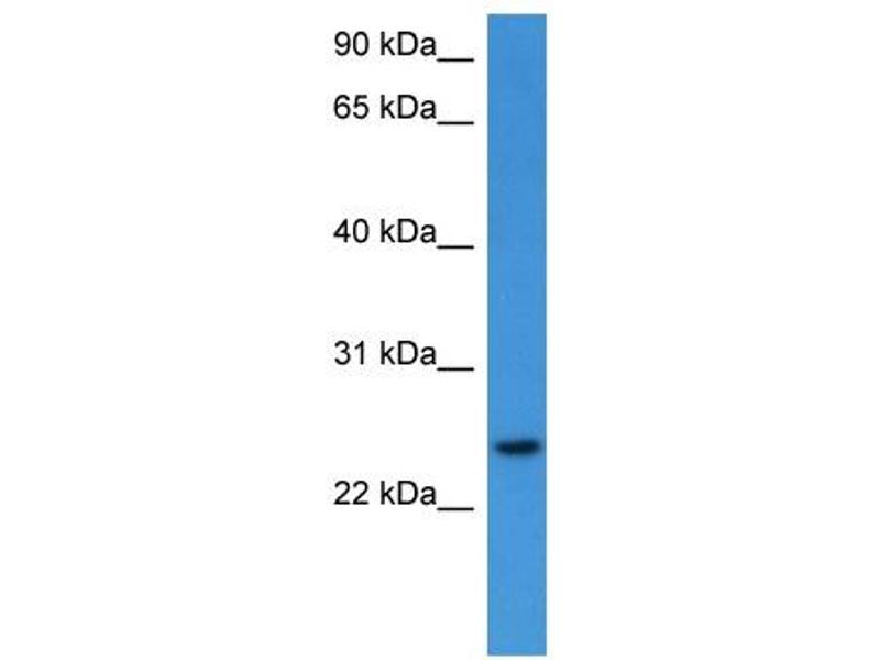 Western Blotting (WB) image for anti-Ras Homolog Family Member G (RHOG) (C-Term) antibody (ABIN2788364)