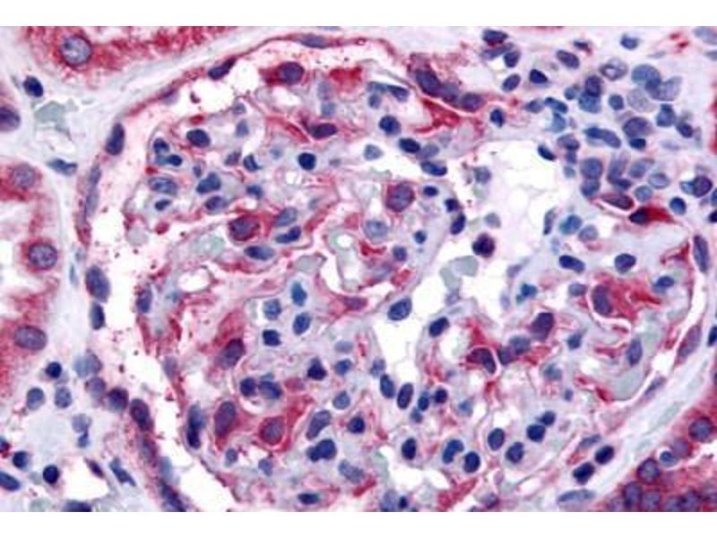 Immunohistochemistry (Paraffin-embedded Sections) (IHC (p)) image for anti-EPH Receptor A4 (EPHA4) (Internal Region) antibody (ABIN213399)