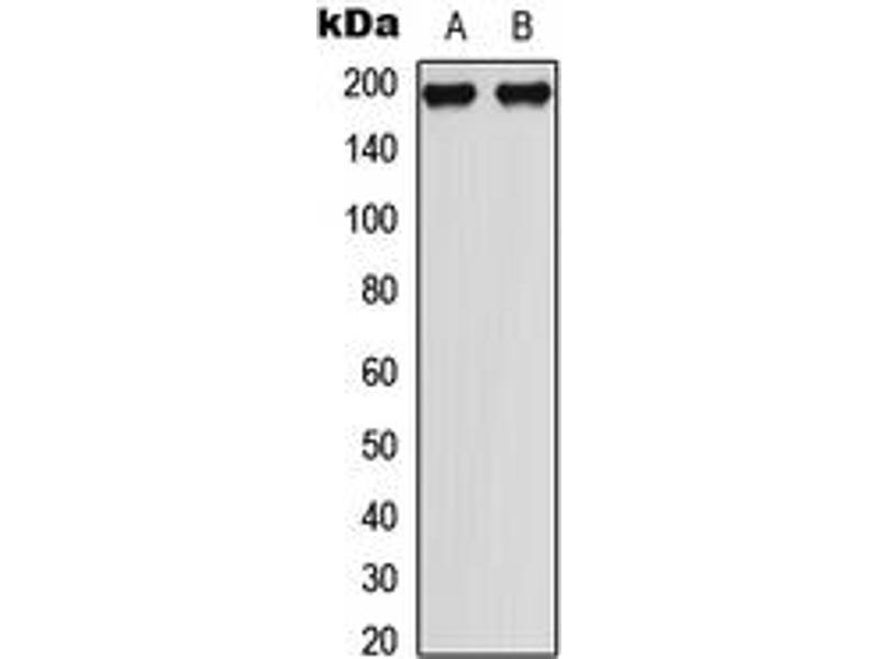 Western Blotting (WB) image for anti-Mitogen-Activated Protein Kinase Kinase Kinase 1 (MAP3K1) (C-Term), (pSer1402) antibody (ABIN2704979)
