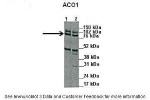 Image no. 4 for anti-Aconitase 1, Soluble (ACO1) (N-Term) antibody (ABIN2778793)