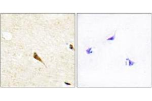 Image no. 2 for anti-MOK Protein Kinase (MOK) (AA 261-310) antibody (ABIN1534199)