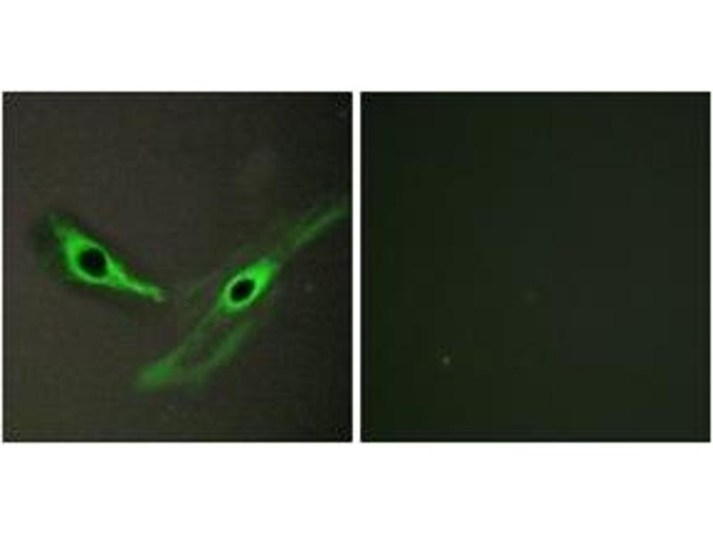Immunofluorescence (IF) image for anti-Intestinal Cell (MAK-Like) Kinase (ICK) (AA 241-290) antibody (ABIN1534198)