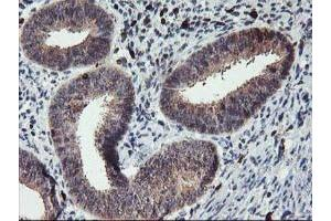 Immunohistochemistry (Paraffin-embedded Sections) (IHC (p)) image for anti-GRAP2 antibody (GRB2-Related Adaptor Protein 2) (ABIN4316111)