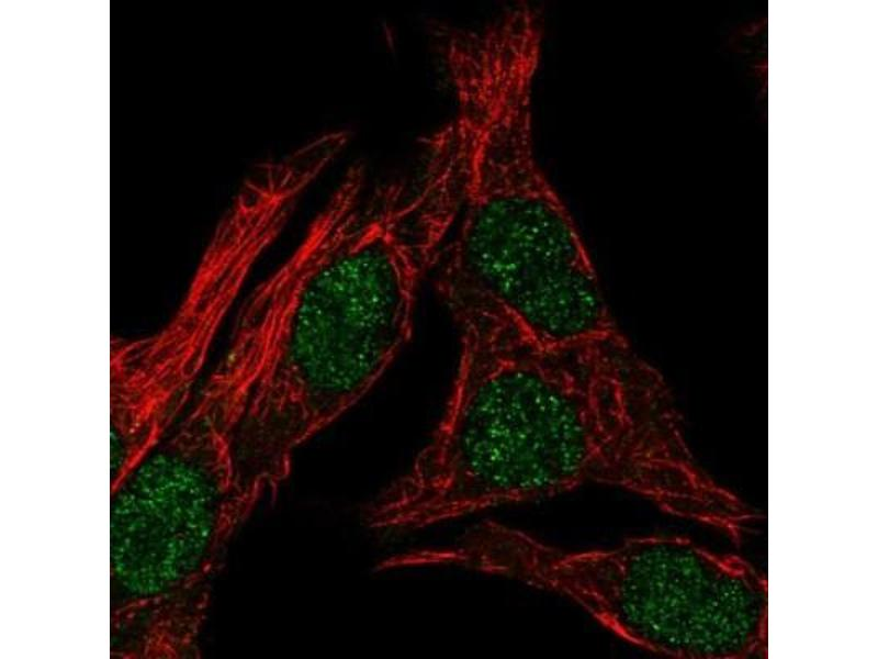 Immunofluorescence (IF) image for anti-Serotonin Receptor 2B (HTR2B) antibody (ABIN4276881)