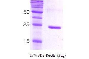 Image no. 1 for Synaptosomal-Associated Protein, 25kDa (SNAP25) protein (ABIN666820)