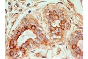Immunohistochemistry (Paraffin-embedded Sections) (IHC (p)) image for anti-CD47 (CD47) antibody (ABIN4261427)