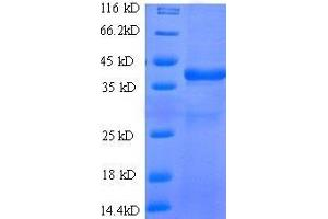Image no. 1 for WAP Four-Disulfide Core Domain 2 (WFDC2) (AA 31-124), (full length) protein (GST tag) (ABIN1047932)