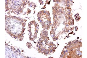 Image no. 2 for anti-TatD DNase Domain Containing 1 (TATDN1) (Center) antibody (ABIN2856440)