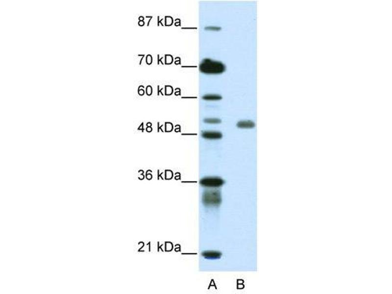 Western Blotting (WB) image for anti-DEAF1 antibody (Deformed Epidermal Autoregulatory Factor 1 (Drosophila)) (C-Term) (ABIN183800)