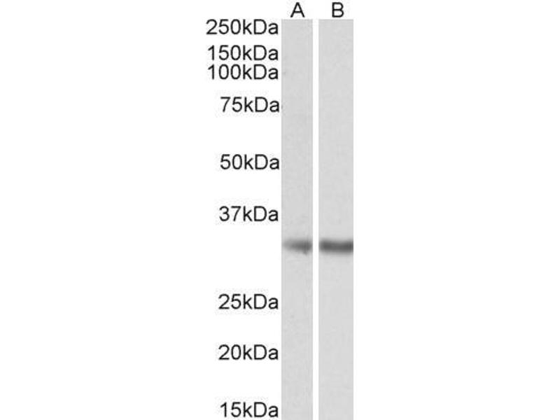 Western Blotting (WB) image for anti-Monoglyceride Lipase (MGLL) antibody (ABIN5872058)