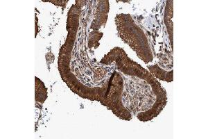 Immunohistochemistry (Paraffin-embedded Sections) (IHC (p)) image for anti-Era G-Protein-Like 1 (E. Coli) (ERAL1) antibody (ABIN4316440)