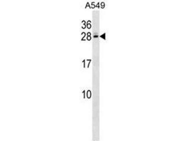 Western Blotting (WB) image for anti-C4b-Binding Protein beta (AA 124-153), (Middle Region) antibody (ABIN950920)