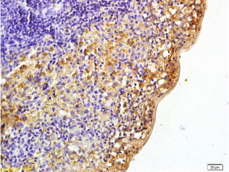Immunohistochemistry (IHC) image for anti-PTK2B Protein tyrosine Kinase 2 beta (PTK2B) (AA 370-420), (pTyr402) antibody (ABIN745763)