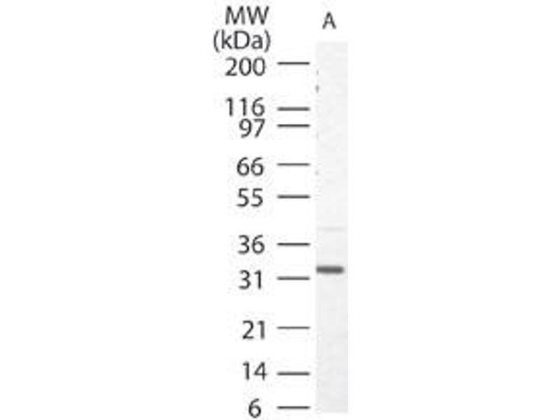 Western Blotting (WB) image for anti-Caspase 3, Apoptosis-Related Cysteine Peptidase (CASP3) antibody (ABIN252651)