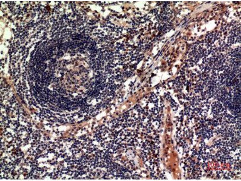 Immunohistochemistry (IHC) image for anti-Tumor Necrosis Factor (Ligand) Superfamily, Member 11 (TNFSF11) (C-Term) antibody (ABIN3187907)