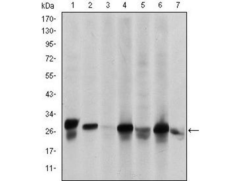 Western Blotting (WB) image for anti-Heat Shock 27kDa Protein 1 (HSPB1) antibody (ABIN1107614)