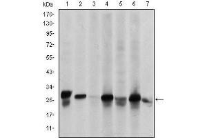 Western Blotting (WB) image for anti-HSPB1 antibody (Heat Shock 27kDa Protein 1) (ABIN1107614)