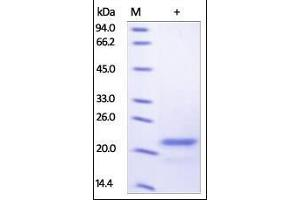 Image no. 1 for Sonic Hedgehog (SHH) (AA 24-197) protein (His tag) (ABIN2181760)