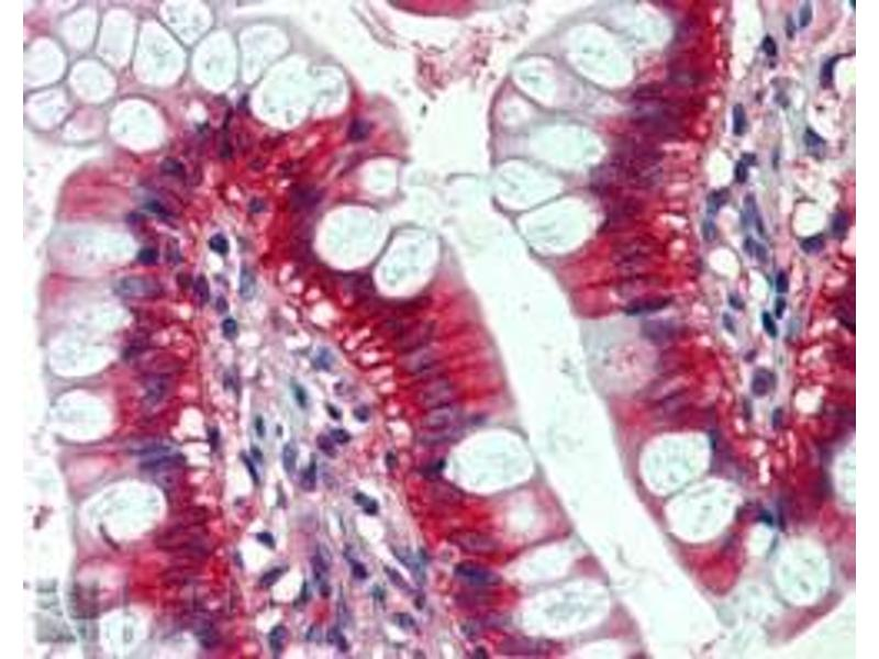 Immunohistochemistry (IHC) image for anti-GTPase NRas antibody (NRAS) (ABIN2444676)