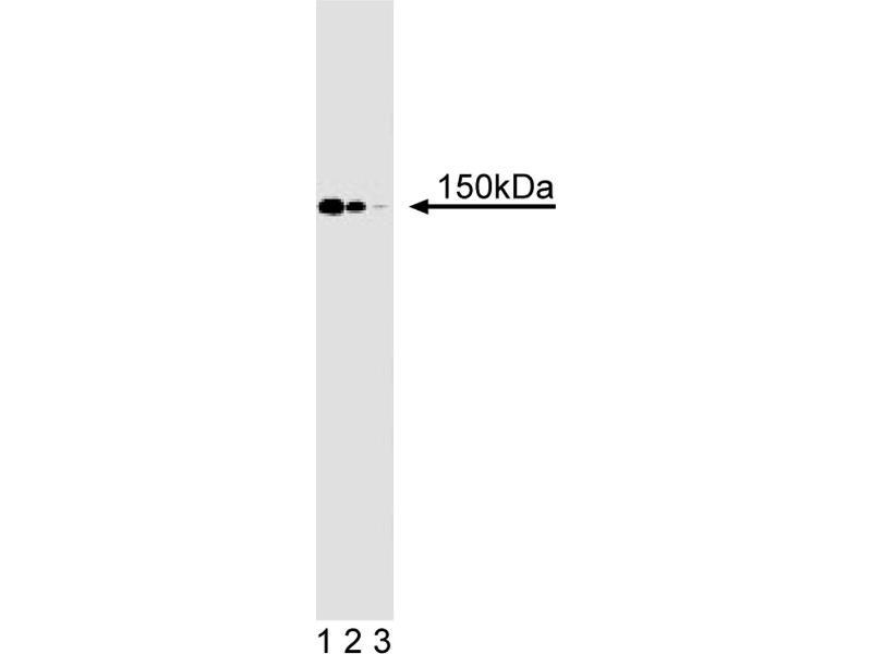 Western Blotting (WB) image for anti-Symplekin (SYMPK) (AA 914-1080) antibody (ABIN968084)