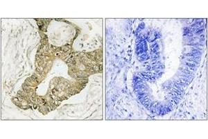 Image no. 2 for anti-Ribosomal Protein S6 Kinase, 90kDa, Polypeptide 3 (RPS6KA3) (AA 346-395) antibody (ABIN1532381)