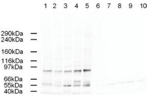 Image no. 1 for anti-Adaptor-Related Protein Complex 2, alpha 2 Subunit (AP2A2) (AA 3-14) antibody (ABIN401165)