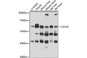 Image no. 1 for anti-Scavenger Receptor Cysteine Rich Domain Containing, Group B (4 Domains) (SRCRB4D) antibody (ABIN6717451)