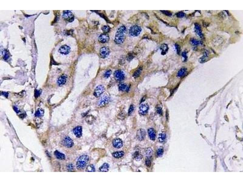 Immunohistochemistry (Paraffin-embedded Sections) (IHC (p)) image for anti-IL5 antibody (Interleukin 5) (ABIN446956)