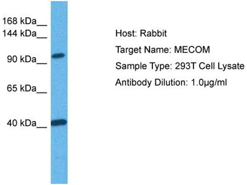 Western Blotting (WB) image for anti-MDS1 and EVI1 Complex Locus (MECOM) (C-Term) Antikörper (ABIN2777403)
