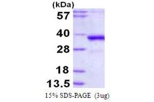 Image no. 1 for Polymerase (DNA Directed), lambda (POLL) (AA 1-300) protein (His tag) (ABIN667964)