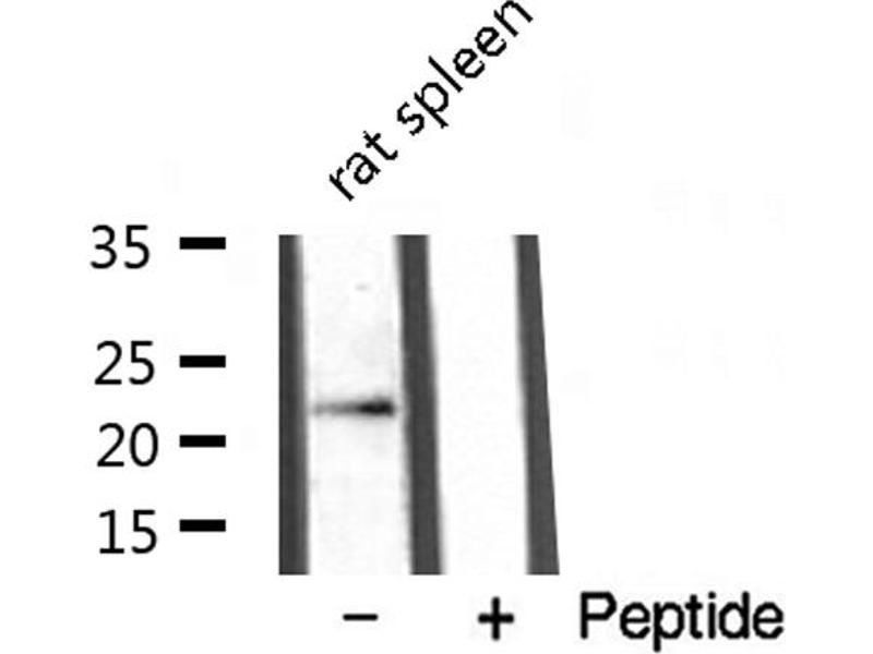 Western Blotting (WB) image for anti-Lymphotoxin beta (TNF Superfamily, Member 3) (LTB) antibody (ABIN6258259)
