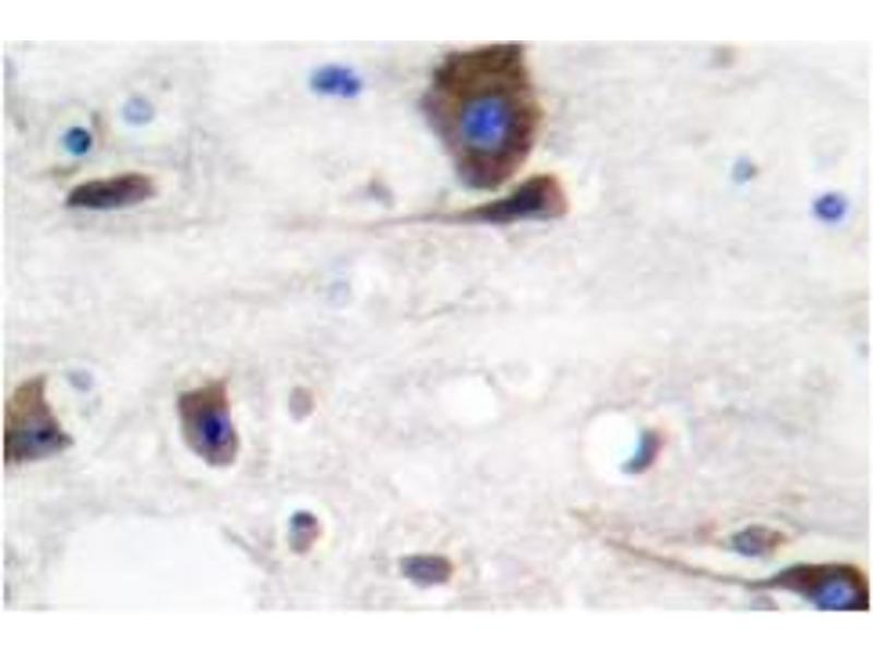 image for anti-Neuregulin 1 (NRG1) antibody (ABIN265466)