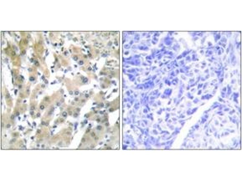 Immunohistochemistry (IHC) image for anti-Thyroid Hormone Receptor, beta (THRB) (AA 391-440) antibody (ABIN1533581)