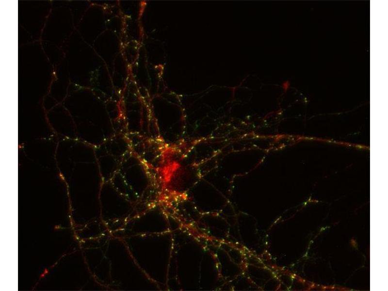 Immunocytochemistry (ICC) image for anti-Neural Precursor Cell Expressed, Developmentally Down-Regulated 4-Like (NEDD4L) antibody (ABIN2690521)