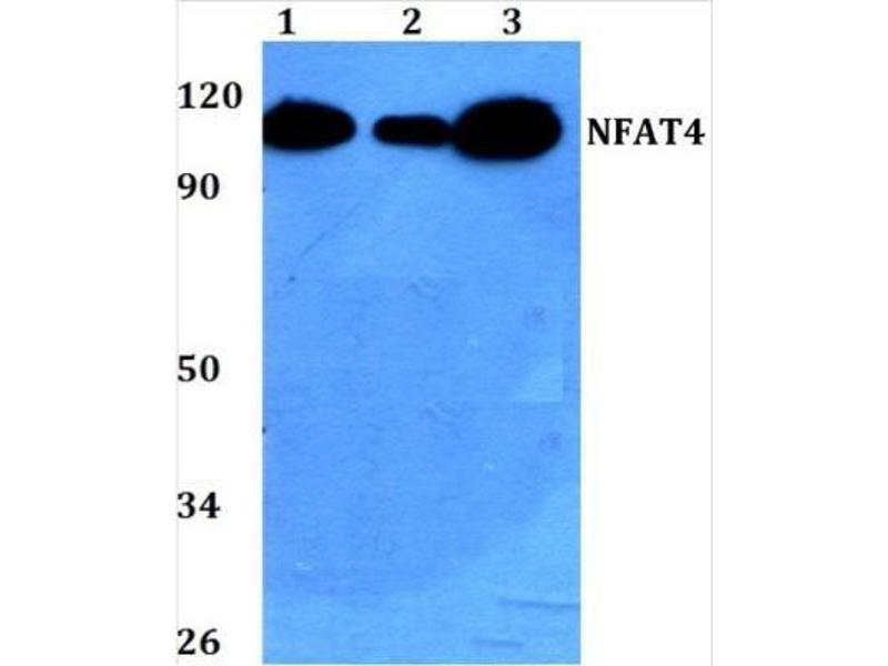 Western Blotting (WB) image for anti-Nuclear Factor of Activated T-Cells, Cytoplasmic, Calcineurin-Dependent 3 (NFATC3) antibody (ABIN408052)