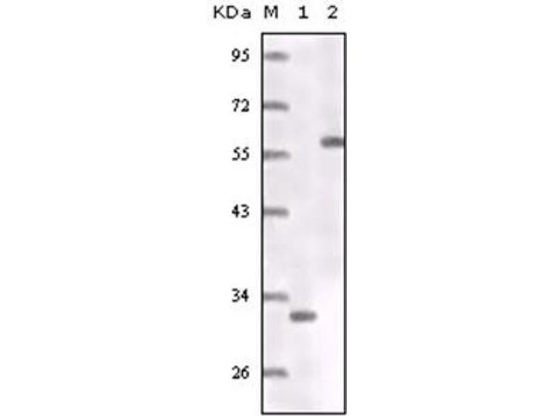 Western Blotting (WB) image for anti-Estrogen Receptor 1 (ESR1) antibody (ABIN1107139)