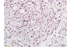 Immunohistochemistry (Paraffin-embedded Sections) (IHC (p)) image for anti-Nuclear Factor of kappa Light Polypeptide Gene Enhancer in B-Cells 1 (NFKB1) (AA 63-113) antibody (ABIN673194)